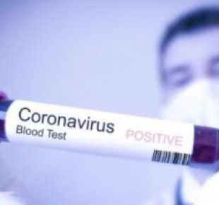Всі Суми - У Сумській області  на коронавірус  інфікувалися ще 4 людини