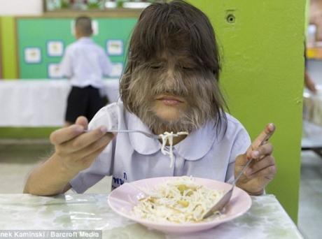 Самая волосатая девочка мира попала в Книгу рекордов Гиннеса.