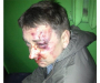 В Сумах подали апелляцию по делу об избиении Евгения Положия